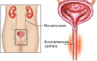 Как проверить мочеточники у женщин