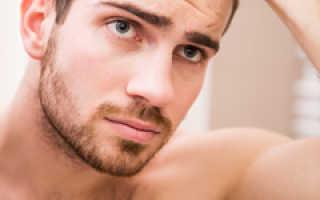 Как сохранить волосы от выпадения у мужчин