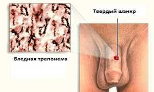Как проявляется сифилис у мужчин